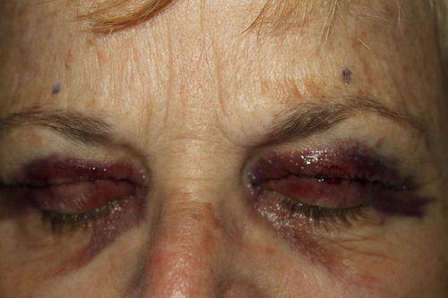 Mom eyes